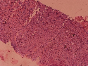 Микроскопическая картина РМЖ (окраска гематоксилин-эозин; увеличение ×100 и ×400). Столбиковая биопсия.